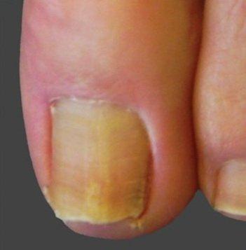 lasersko liječenje gljivica na noktima