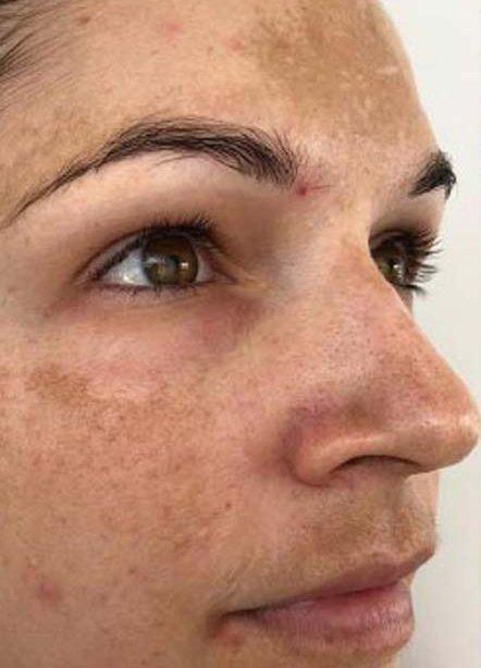 depigmentacija kože Banja Luka