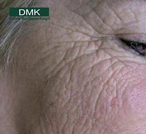 DMK tretmani lica
