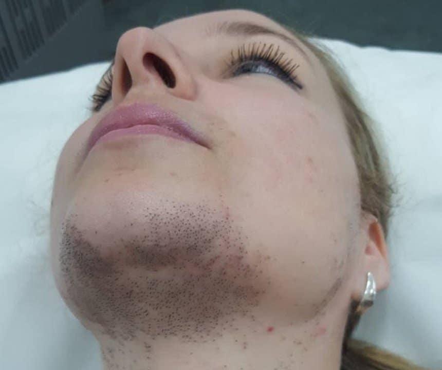 epilacija diodnim laserom