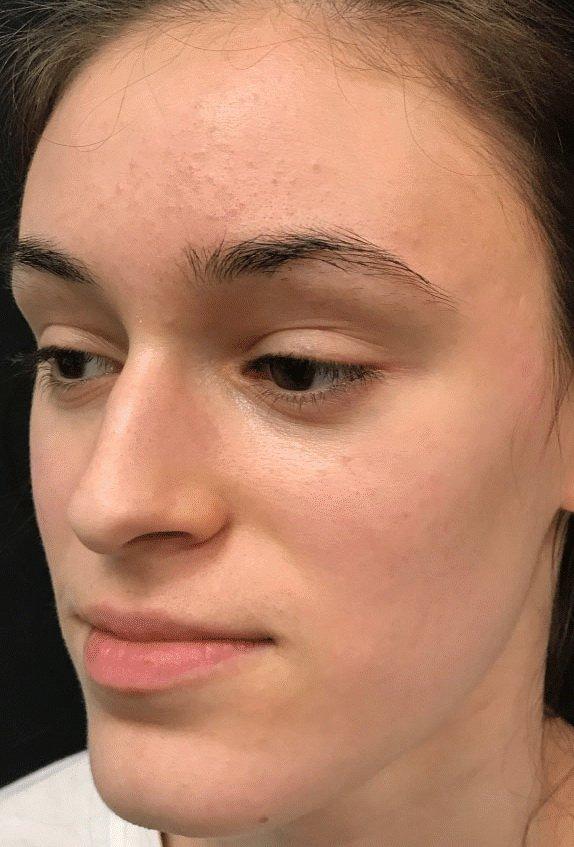 lasersko uklanjanje ožiljaka