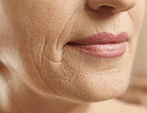 Podmlađivanje kože Pico laserom