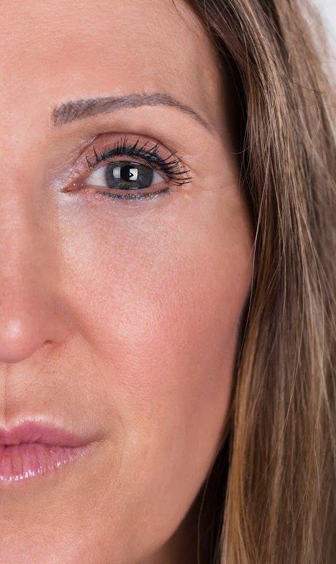 Podmlađivanje kože