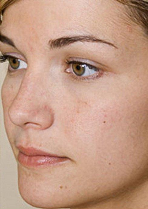Akupunktura lica Banja Luka