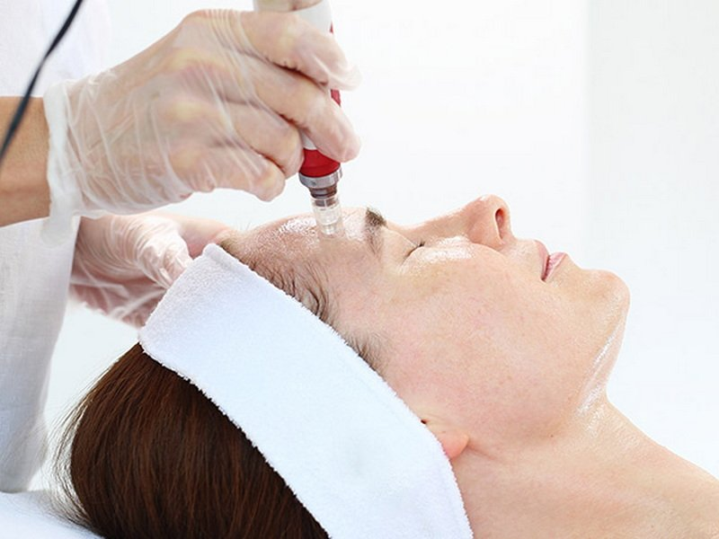 5-Things-to-know-about-Mesotherapy-for-Face.jpg